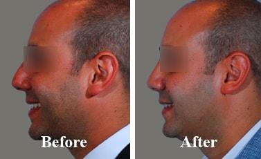 Best-Nose-Reconstructive-Surgeon-before-and-after-images