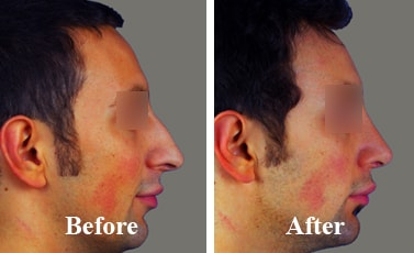 Best-Revision-Rhinoplasty-Surgeon-before-and-after-photos