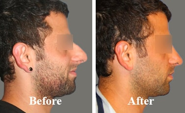 Best-Rhinoplasty-Surgeon-India-before-and-after
