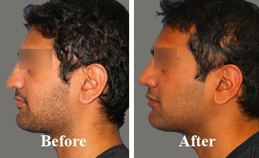 Best-Rhinoplasty-Surgeon-Near-Me-before-and-after-pictures