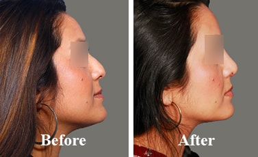 Nose-Correction-Surgery-before-and-after-result
