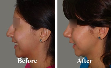 Nose-Reconstruction-Surgery-after-procedure